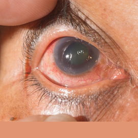 glaucoma eye disorder treatment in mulund